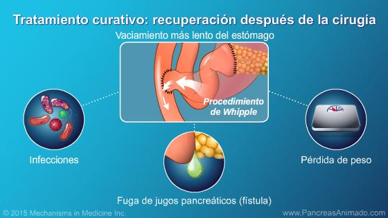 Tratamiento y resultados - Presentación de diapositivas